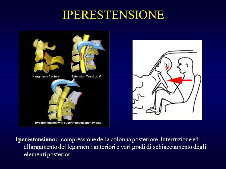 IPERESTENSIONE Iperestensione : compressione della colonna posteriore. Interruzione ed allargamento dei legamenti anteriori e vari gradi di schiacciam
