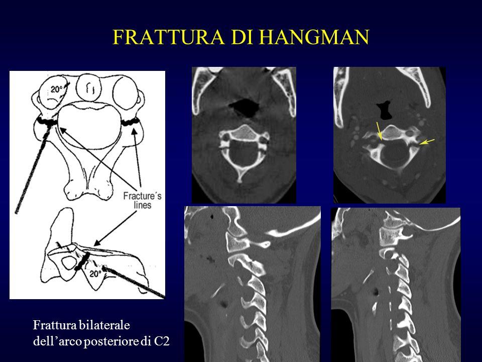 FRATTURA DI HANGMAN Frattura bilaterale dellarco posteriore di C2