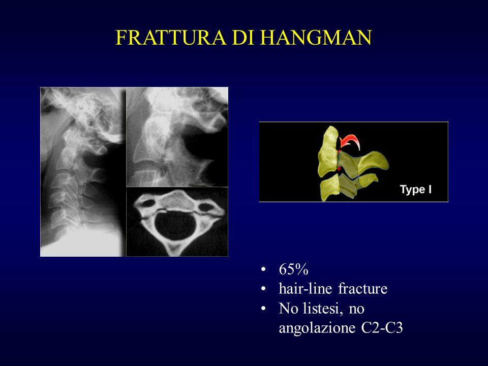 FRATTURA DI HANGMAN 65% hair-line fracture No listesi, no angolazione C2-C3