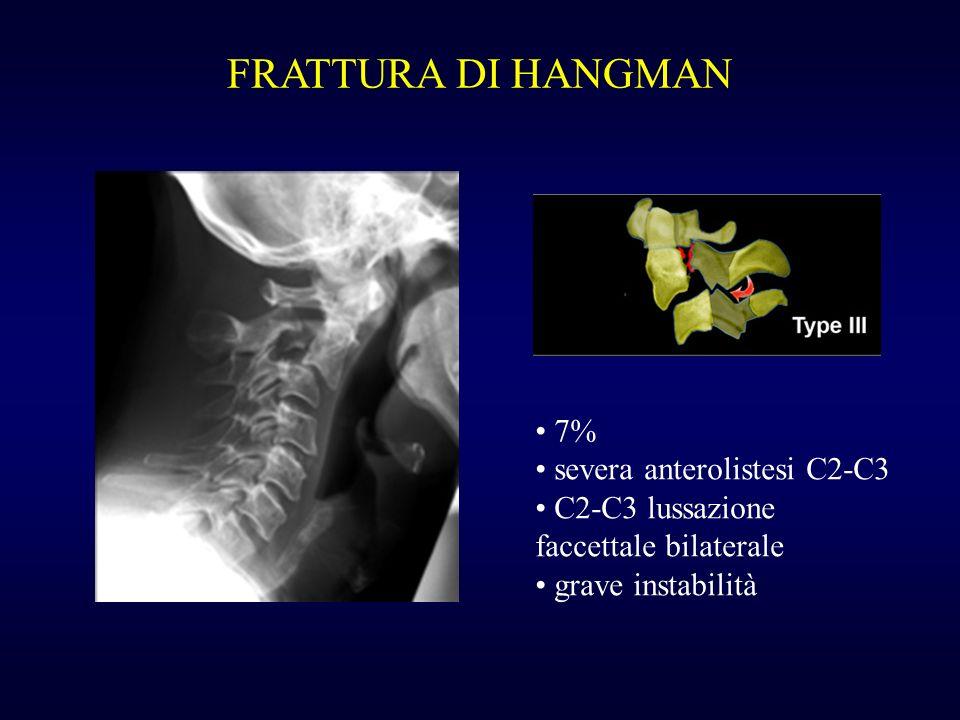 FRATTURA DI HANGMAN 7% severa anterolistesi C2-C3 C2-C3 lussazione faccettale bilaterale grave instabilità