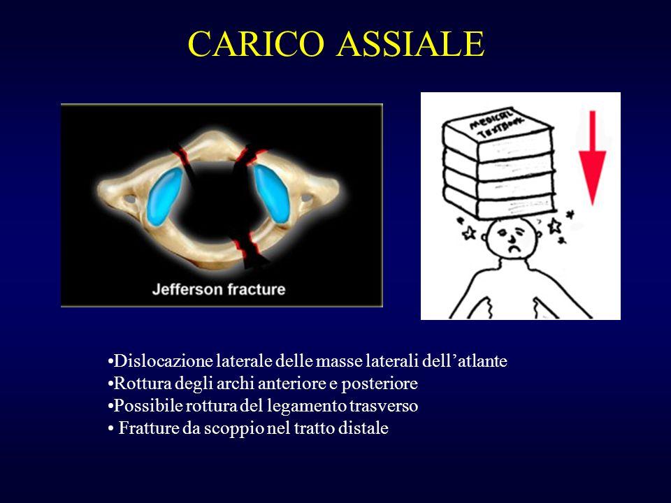CARICO ASSIALE Dislocazione laterale delle masse laterali dellatlante Rottura degli archi anteriore e posteriore Possibile rottura del legamento trasv