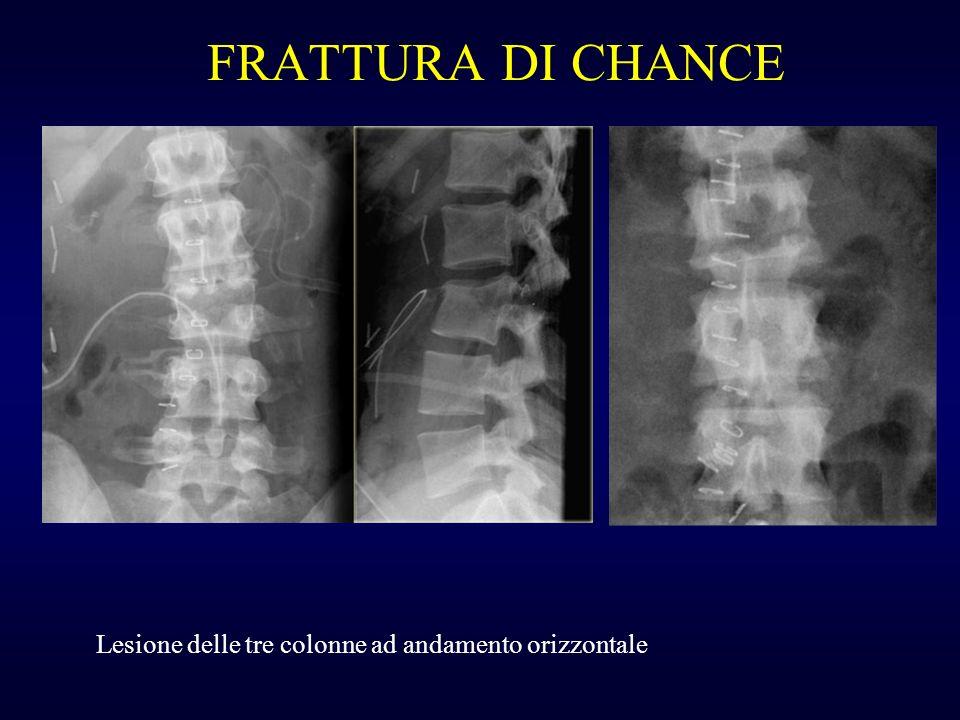 FRATTURA DI CHANCE Lesione delle tre colonne ad andamento orizzontale