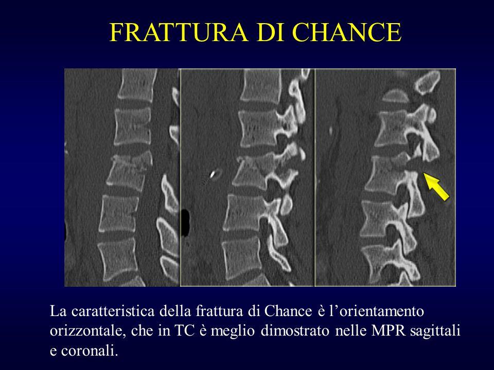 FRATTURA DI CHANCE La caratteristica della frattura di Chance è lorientamento orizzontale, che in TC è meglio dimostrato nelle MPR sagittali e coronal