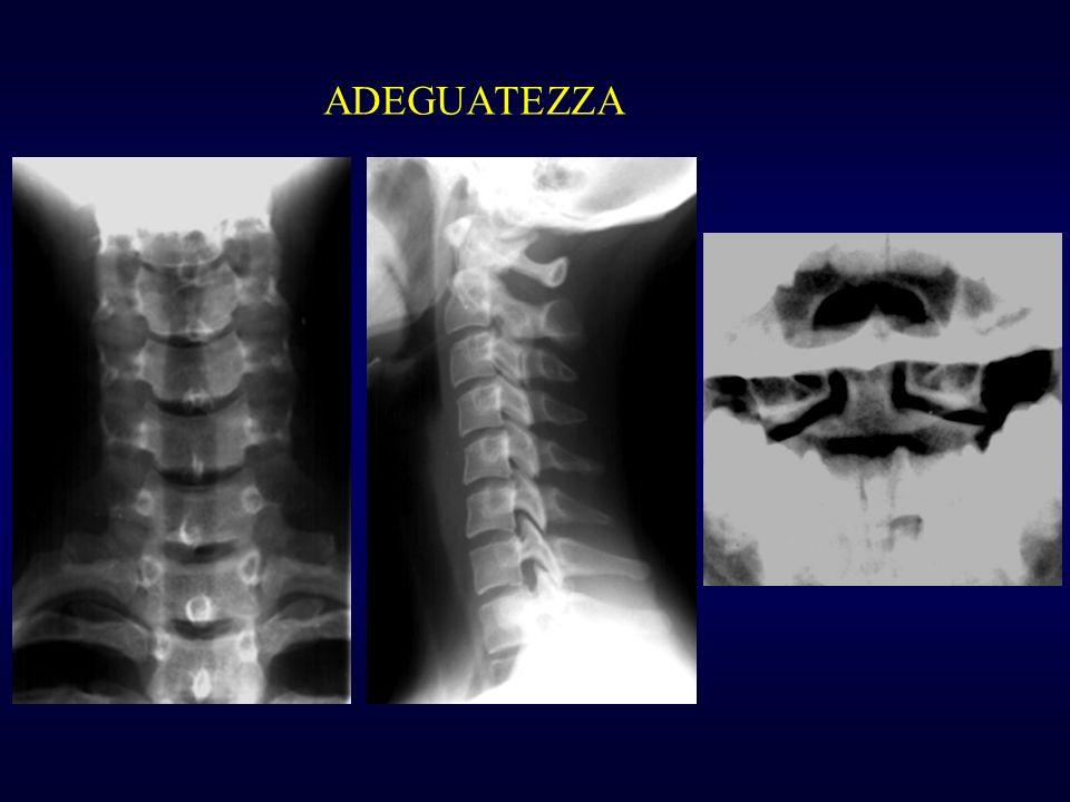 CARICO ASSIALE Dislocazione laterale delle masse laterali dellatlante Rottura degli archi anteriore e posteriore Possibile rottura del legamento trasverso Fratture da scoppio nel tratto distale