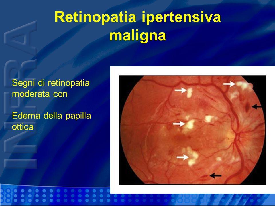 Retinopatia ipertensiva maligna Segni di retinopatia moderata con Edema della papilla ottica