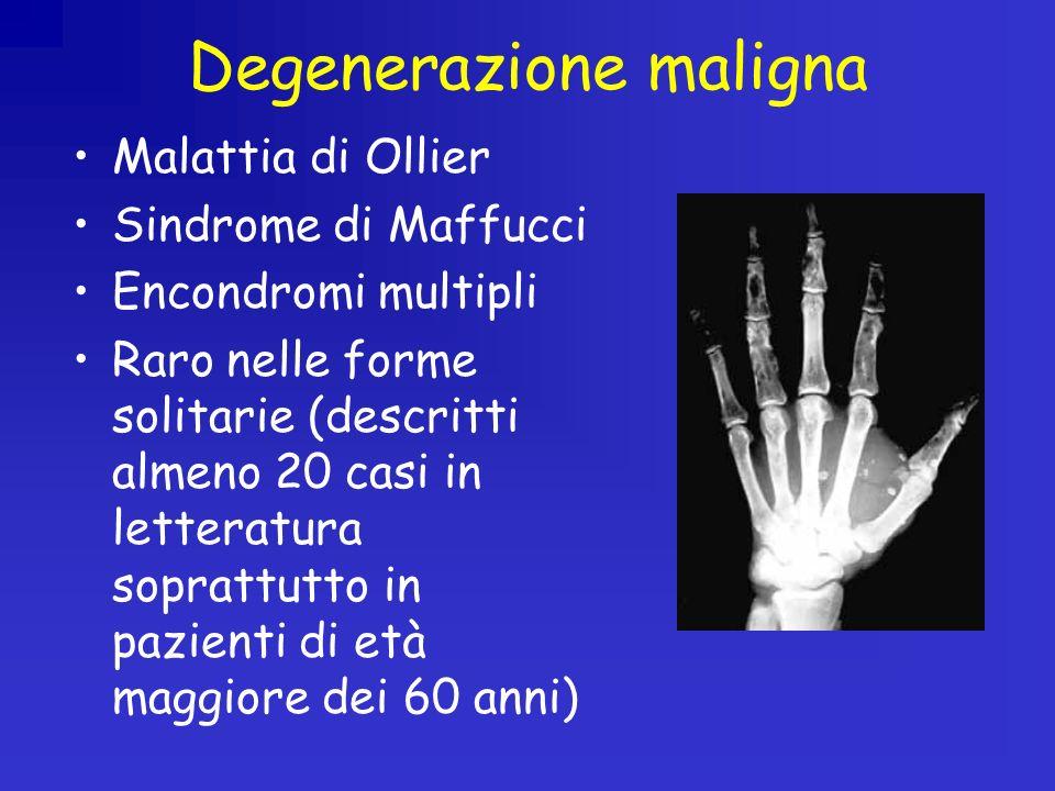 Degenerazione maligna Malattia di Ollier Sindrome di Maffucci Encondromi multipli Raro nelle forme solitarie (descritti almeno 20 casi in letteratura soprattutto in pazienti di età maggiore dei 60 anni)