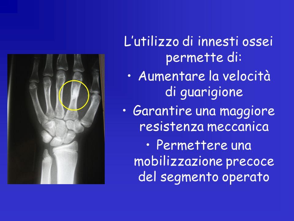 Lutilizzo di innesti ossei permette di: Aumentare la velocità di guarigione Garantire una maggiore resistenza meccanica Permettere una mobilizzazione precoce del segmento operato