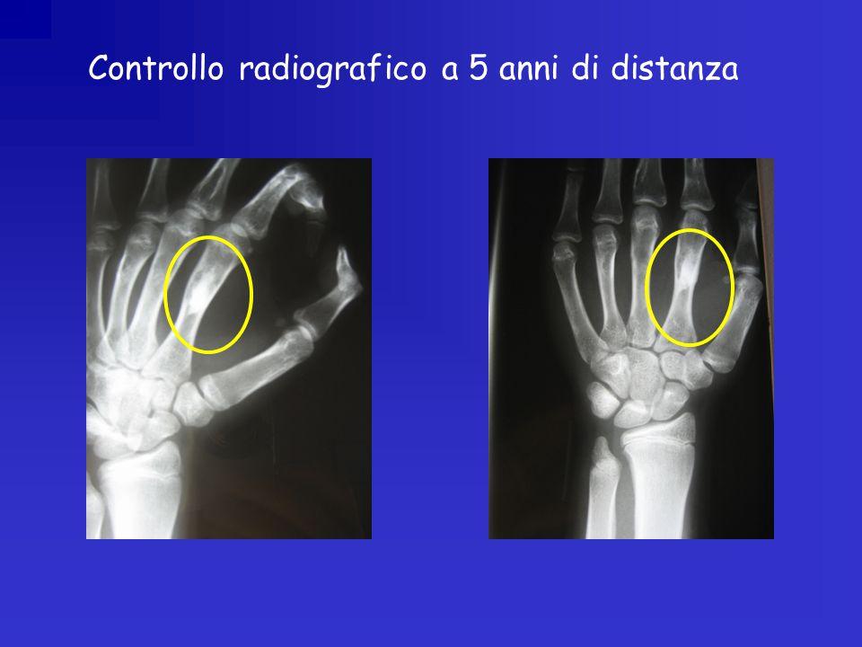Controllo radiografico a 5 anni di distanza