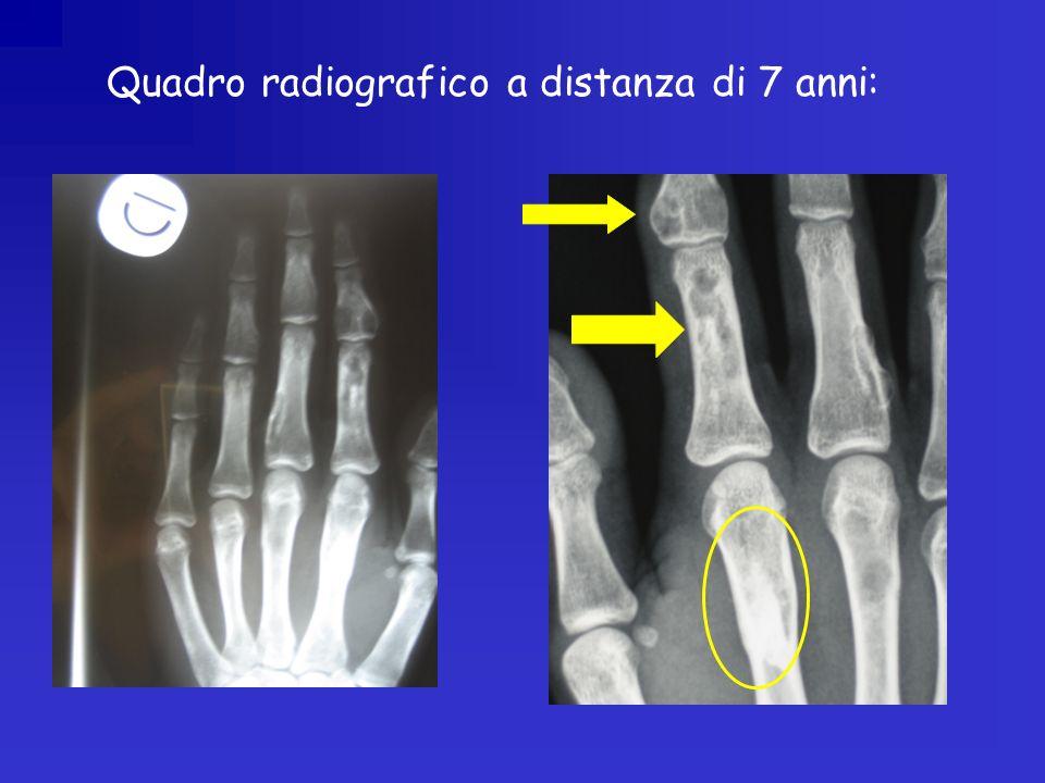 Quadro radiografico a distanza di 7 anni: