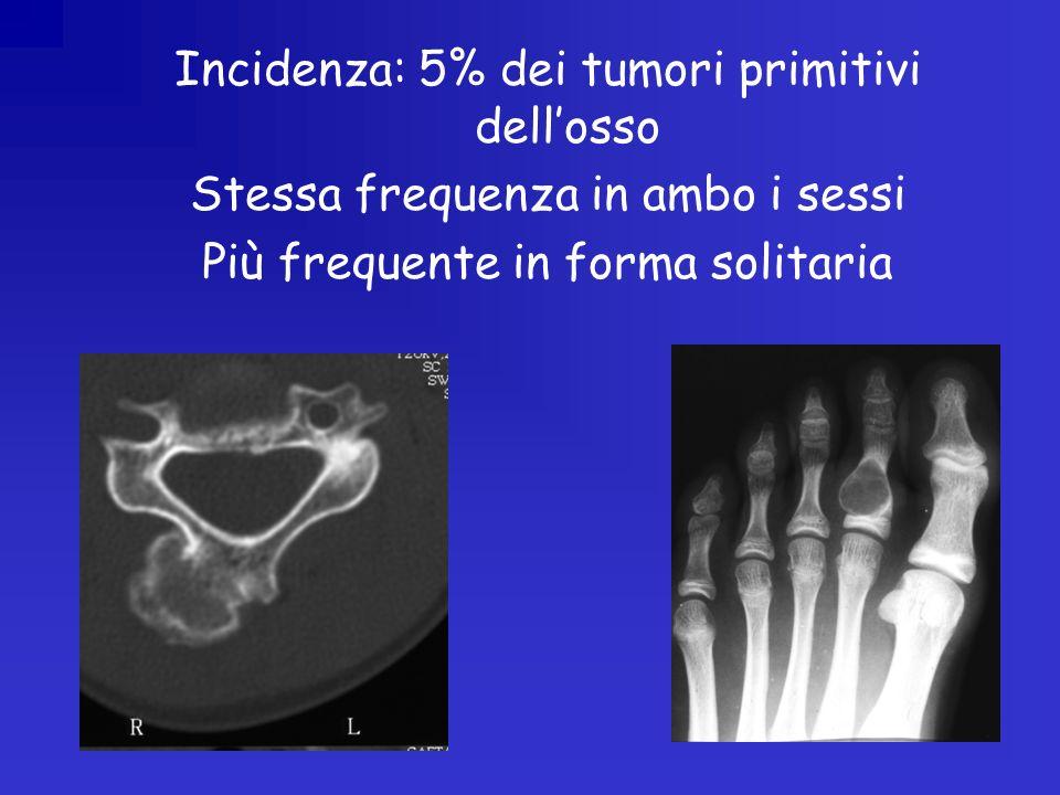 Incidenza: 5% dei tumori primitivi dellosso Stessa frequenza in ambo i sessi Più frequente in forma solitaria