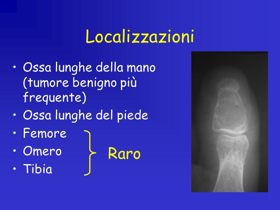 Localizzazioni Ossa lunghe della mano (tumore benigno più frequente) Ossa lunghe del piede Femore Omero Tibia Raro