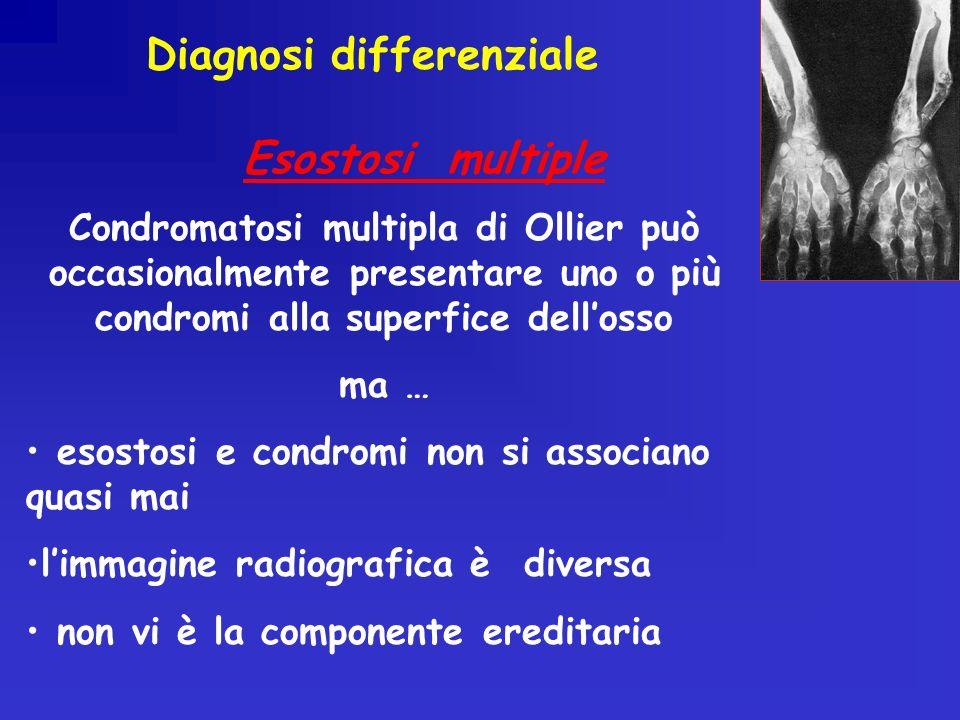 Condromatosi multipla di Ollier può occasionalmente presentare uno o più condromi alla superfice dellosso ma … esostosi e condromi non si associano quasi mai limmagine radiografica è diversa non vi è la componente ereditaria Esostosi multiple Diagnosi differenziale