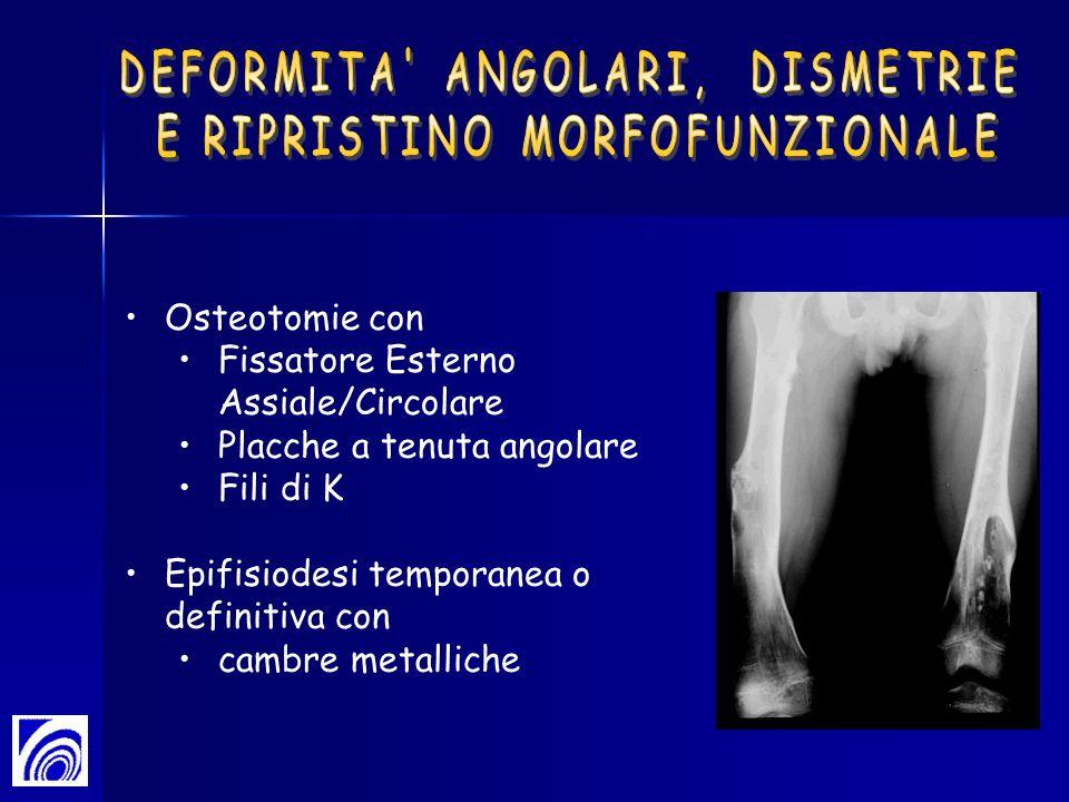 Osteotomie con Fissatore Esterno Assiale/Circolare Placche a tenuta angolare Fili di K Epifisiodesi temporanea o definitiva con cambre metalliche