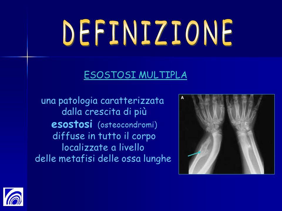 una patologia caratterizzata dalla crescita di più esostosi (osteocondromi) diffuse in tutto il corpo localizzate a livello delle metafisi delle ossa