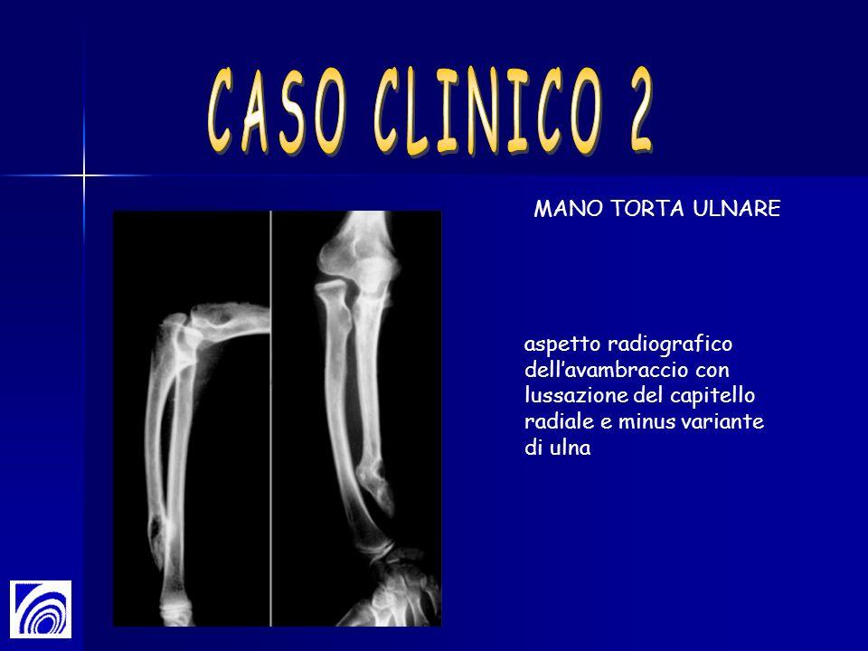 aspetto radiografico dellavambraccio con lussazione del capitello radiale e minus variante di ulna MANO TORTA ULNARE