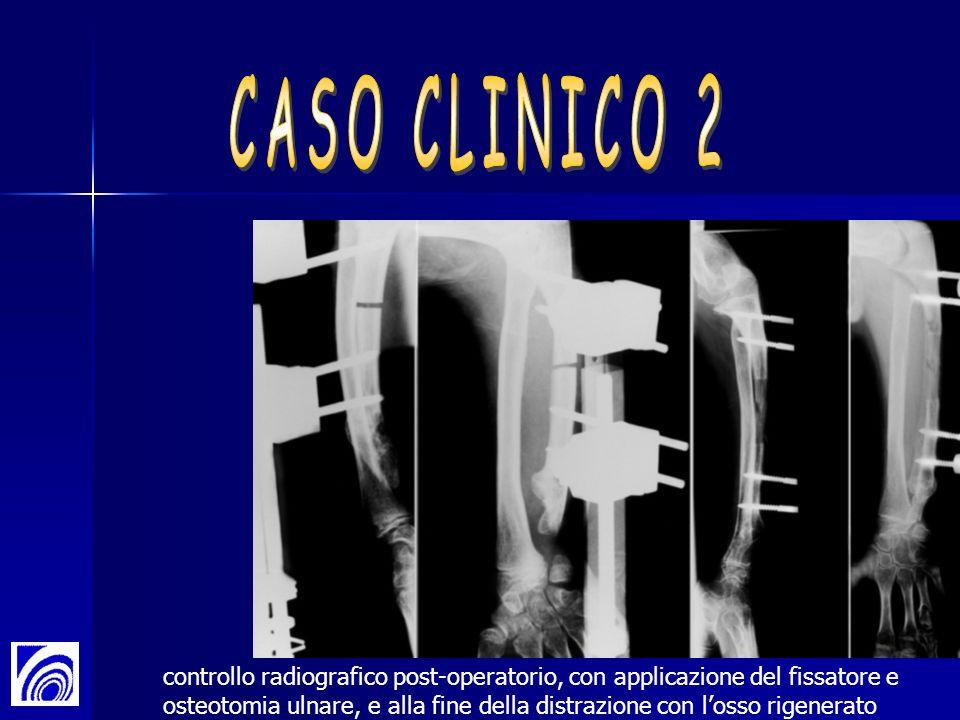 controllo radiografico post-operatorio, con applicazione del fissatore e osteotomia ulnare, e alla fine della distrazione con losso rigenerato