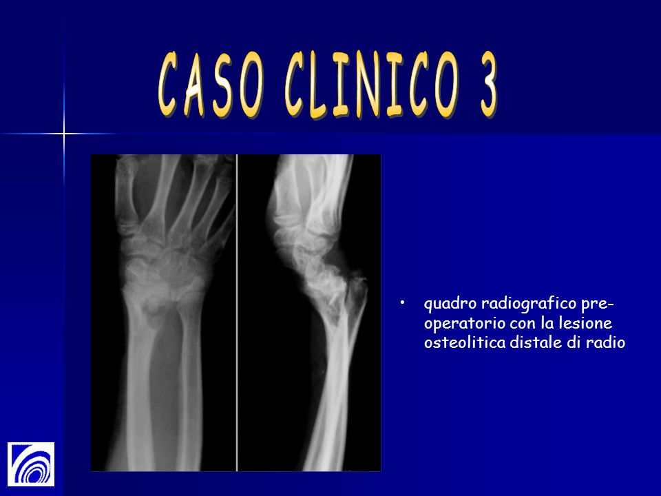 quadro radiografico pre- operatorio con la lesione osteolitica distale di radio
