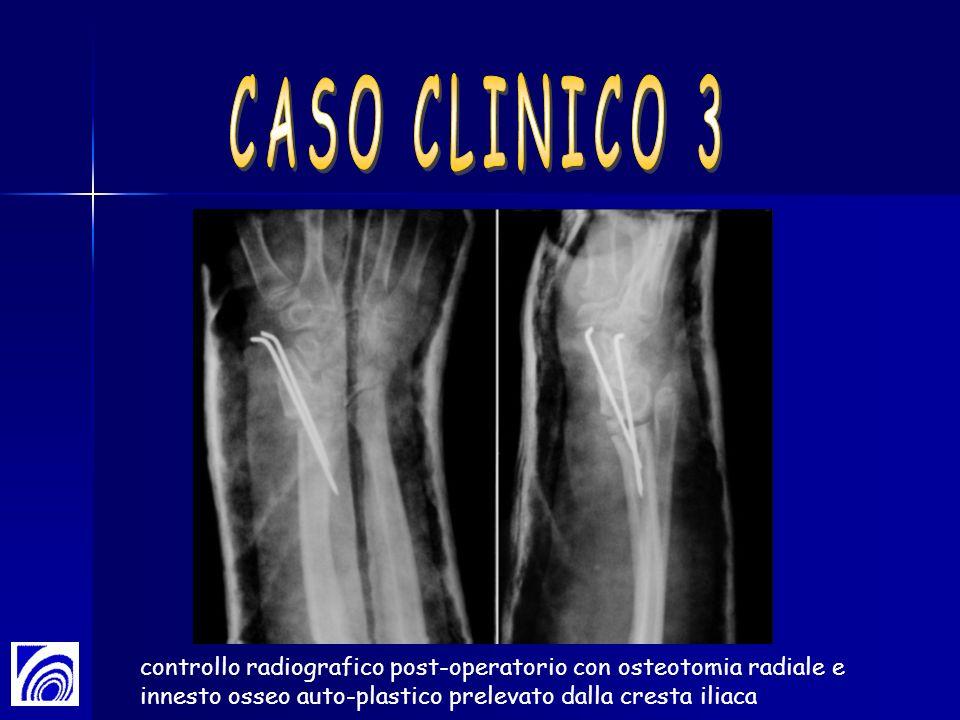 controllo radiografico post-operatorio con osteotomia radiale e innesto osseo auto-plastico prelevato dalla cresta iliaca