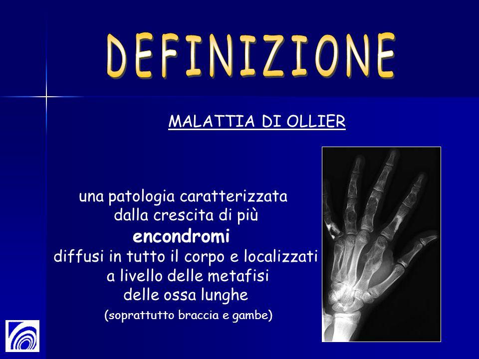 MALATTIA DI OLLIER una patologia caratterizzata dalla crescita di più encondromi diffusi in tutto il corpo e localizzati a livello delle metafisi dell