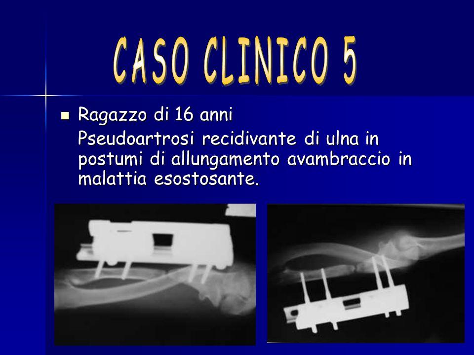 Ragazzo di 16 anni Ragazzo di 16 anni Pseudoartrosi recidivante di ulna in postumi di allungamento avambraccio in malattia esostosante.