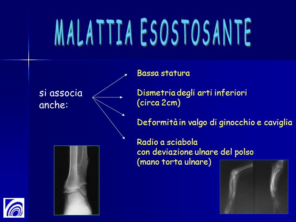 si associa anche: Bassa statura Dismetria degli arti inferiori (circa 2cm) Deformità in valgo di ginocchio e caviglia Radio a sciabola con deviazione