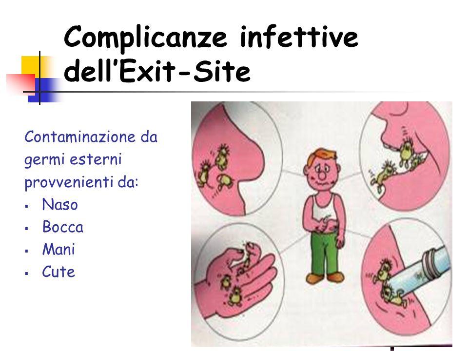 Complicanze infettive dellExit-Site Contaminazione da germi esterni provvenienti da: Naso Bocca Mani Cute