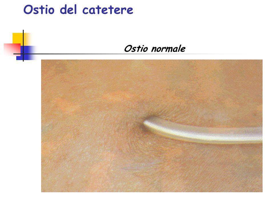 Ostio del catetere Ostio normale