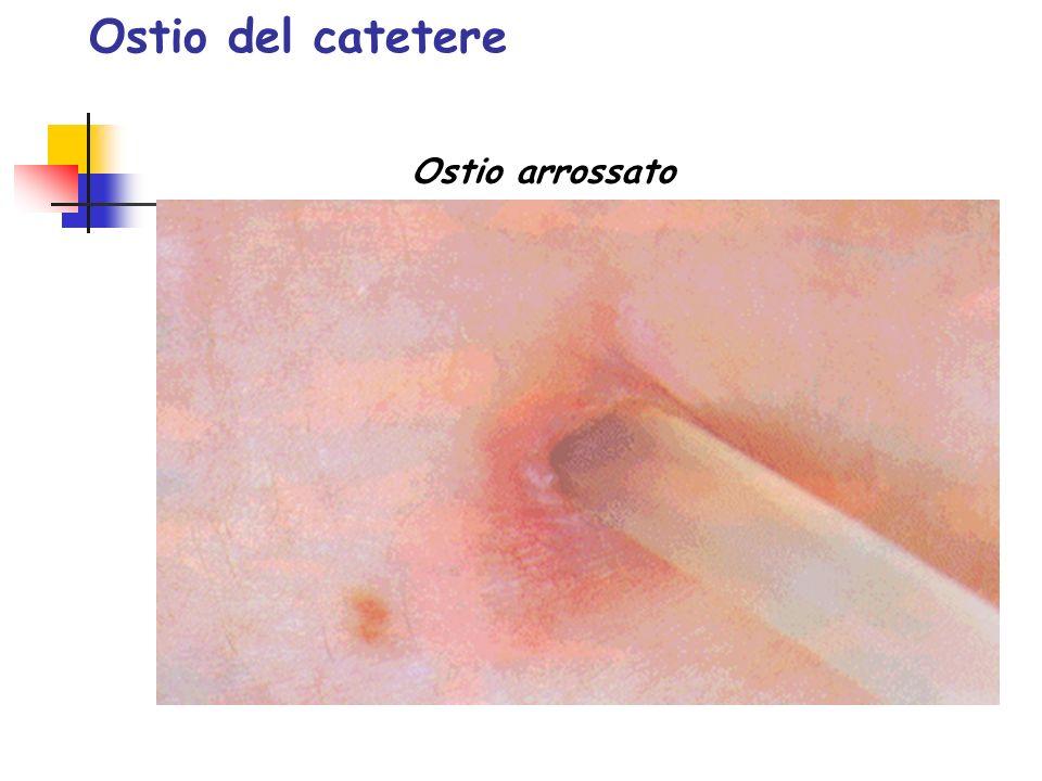 Ostio del catetere Ostio arrossato