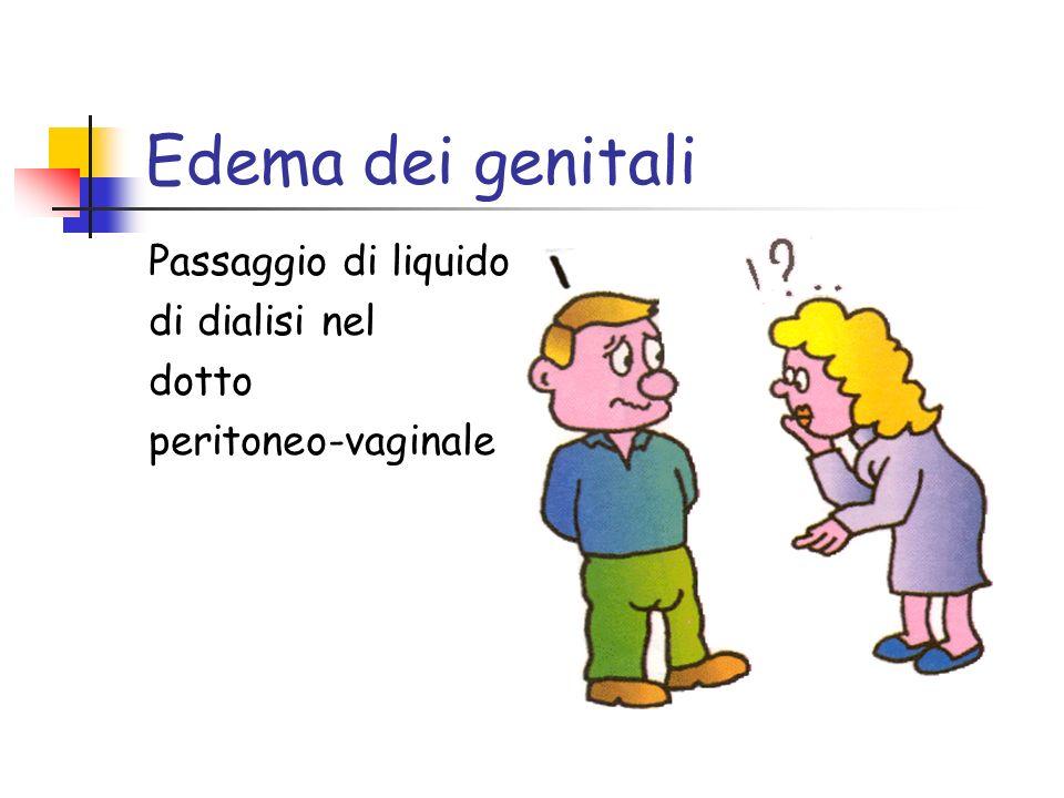 Edema dei genitali Passaggio di liquido di dialisi nel dotto peritoneo-vaginale