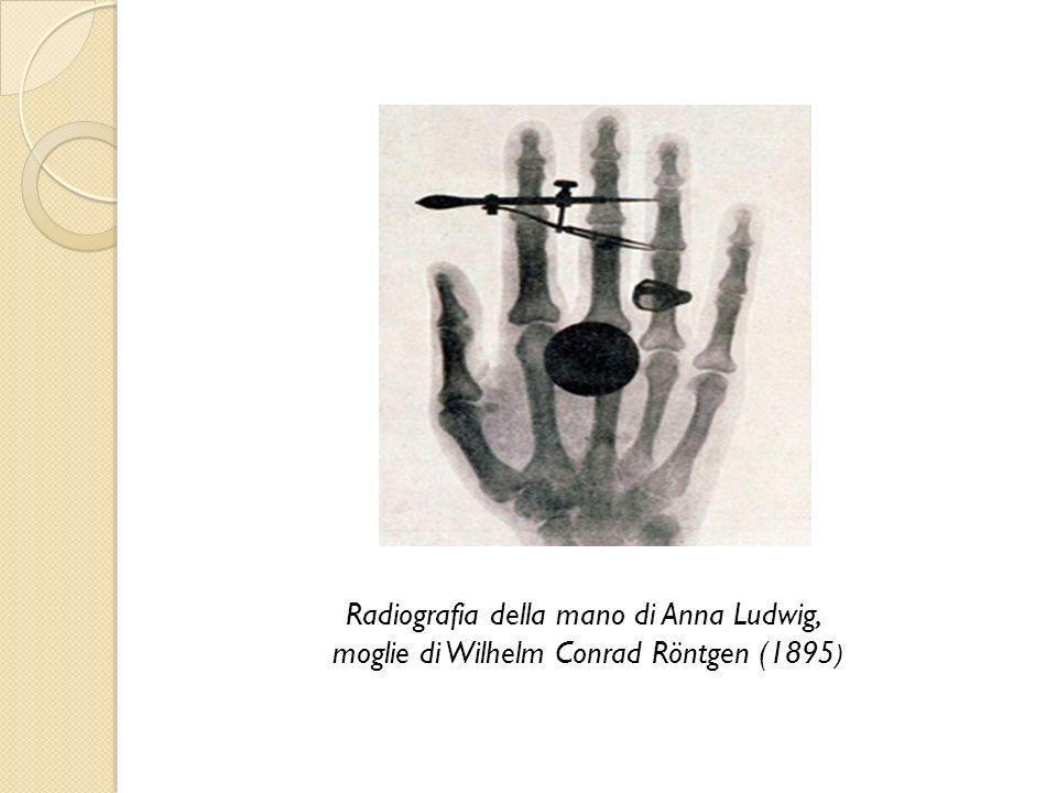 Radiografia della mano di Anna Ludwig, moglie di Wilhelm Conrad Röntgen (1895 )