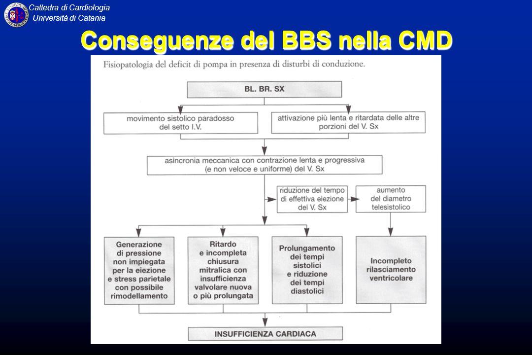 Cattedra di Cardiologia Università di Catania Conseguenze del BBS nella CMD