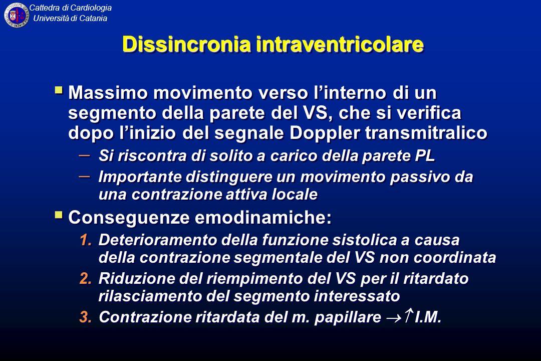 Cattedra di Cardiologia Università di Catania Dissincronia intraventricolare Massimo movimento verso linterno di un segmento della parete del VS, che