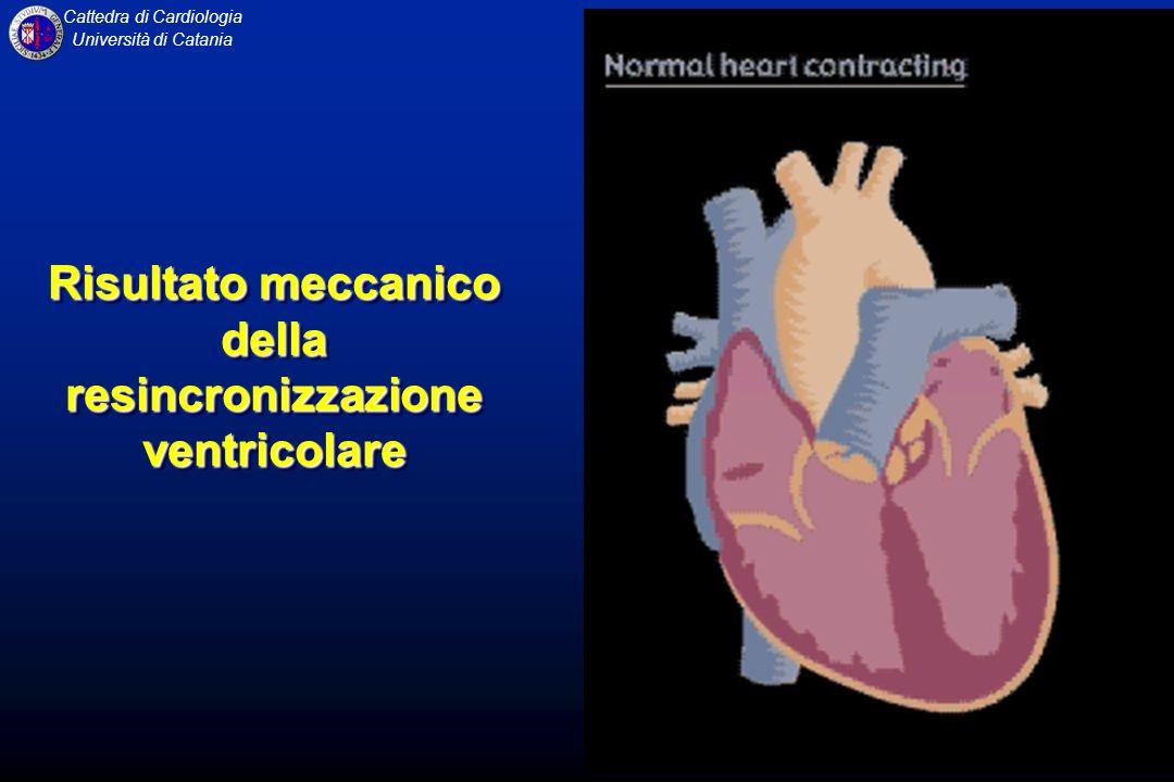 Cattedra di Cardiologia Università di Catania Risultato meccanico della resincronizzazione ventricolare