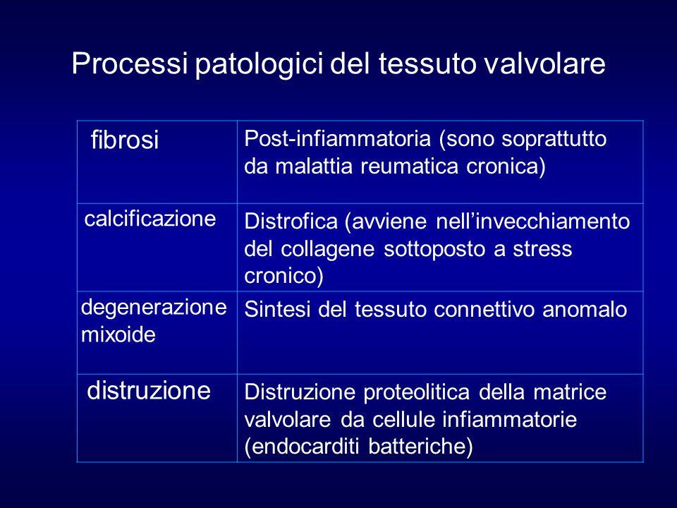 Processi patologici del tessuto valvolare Post-infiammatoria (sono soprattutto da malattia reumatica cronica) Distrofica (avviene nellinvecchiamento d