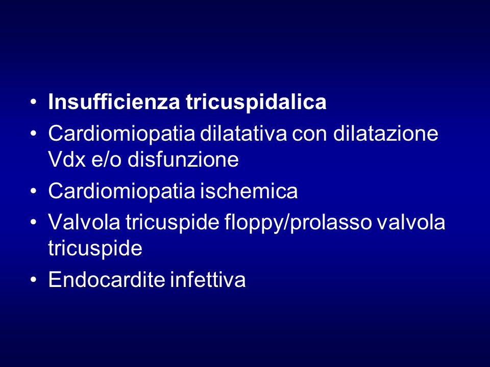 Insufficienza tricuspidalica Cardiomiopatia dilatativa con dilatazione Vdx e/o disfunzione Cardiomiopatia ischemica Valvola tricuspide floppy/prolasso