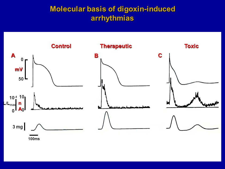10 nAnAnAnA mV ControlTherapeuticToxic A B C 0 50 0 10 -4 L/L max 0 3 mg Molecular basis of digoxin-induced arrhythmias 100ms