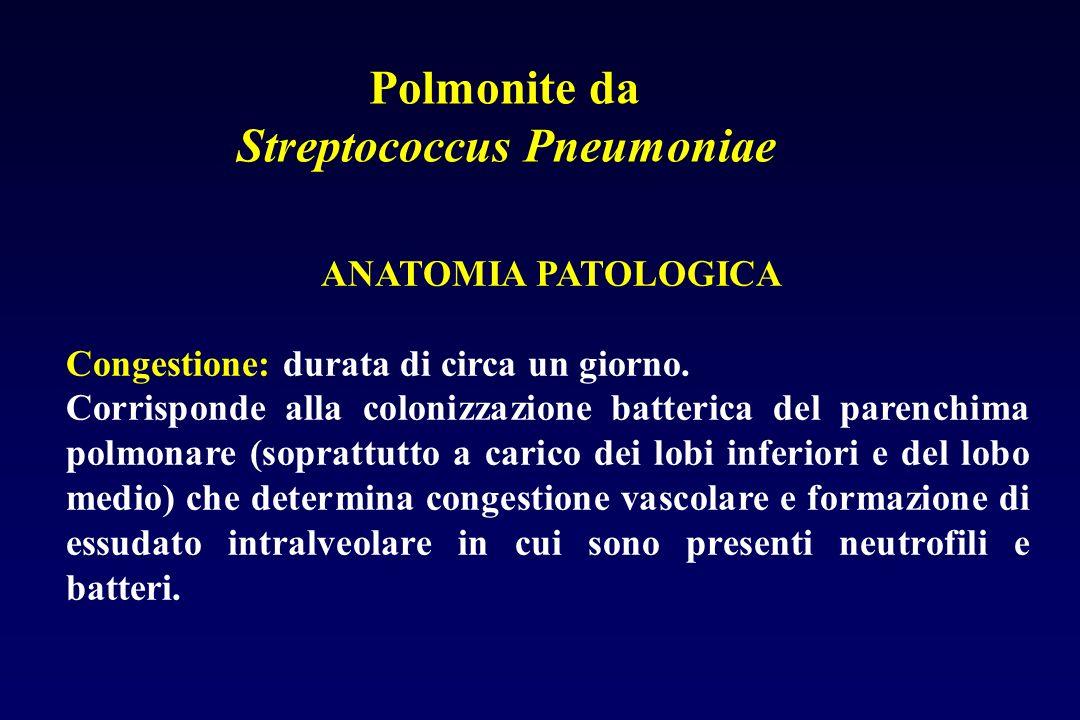 Patogenicità dello Streptococcus Pneumoniae La polmonite è in genere preceduta da infezione virale che induce sulle cellule alveolari recettori per un