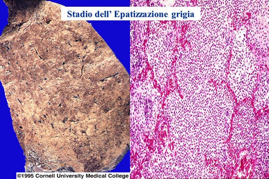 Polmonite da Streptococcus Pneumoniae ANATOMIA PATOLOGICA Epatizzazione grigia: degradazione dei neutrofili e globuli rossi, prosegue il deposito di f