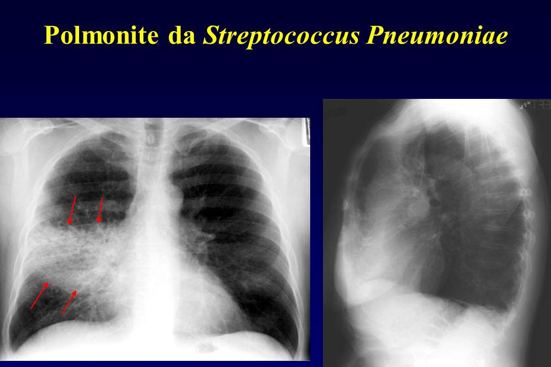 Polmonite da Streptococcus Pneumoniae Rx torace Immagine Rx di consolidamento a estensione polmonare lobare o sublobare; spesso presente broncogramma