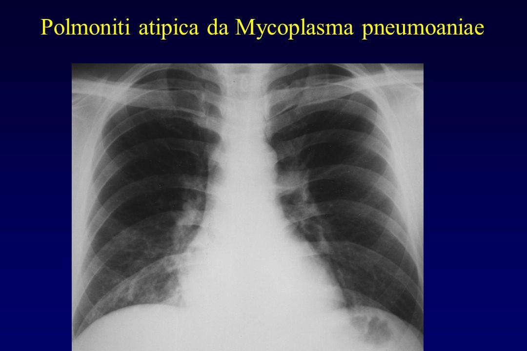 Polmoniti atipica da Mycoplasma pneumoaniae Rx torace Infiltrati interstiziali diffusi (vetro smerigliato) più spesso ai lobi inferiori e con distribu
