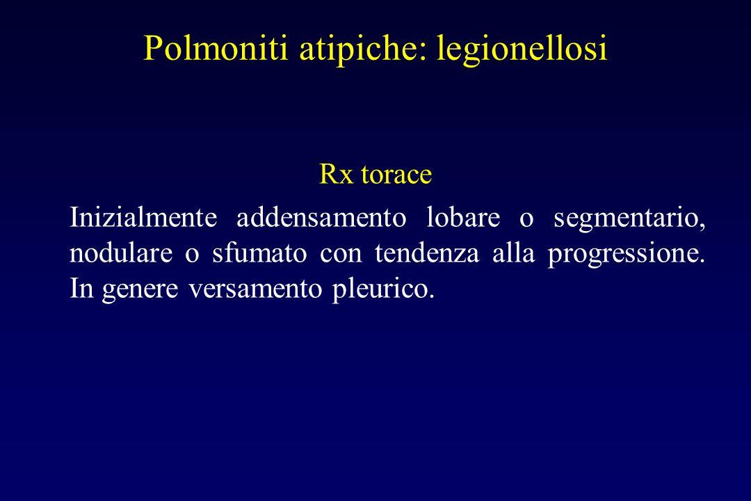 Polmoniti atipiche: legionellosi Anatomia patologica A focolai spesso confluenti Sintomi Insorgenza generalmente brusca, febbre elevata, tosse produtt