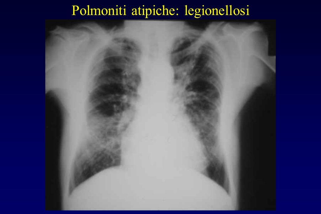 Polmoniti atipiche: legionellosi Rx torace Inizialmente addensamento lobare o segmentario, nodulare o sfumato con tendenza alla progressione. In gener