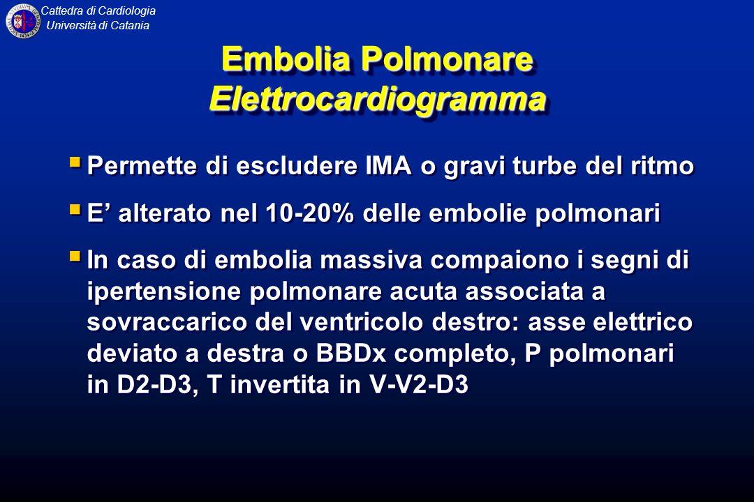 Cattedra di Cardiologia Università di Catania Embolia Polmonare Elettrocardiogramma Permette di escludere IMA o gravi turbe del ritmo E alterato nel 1