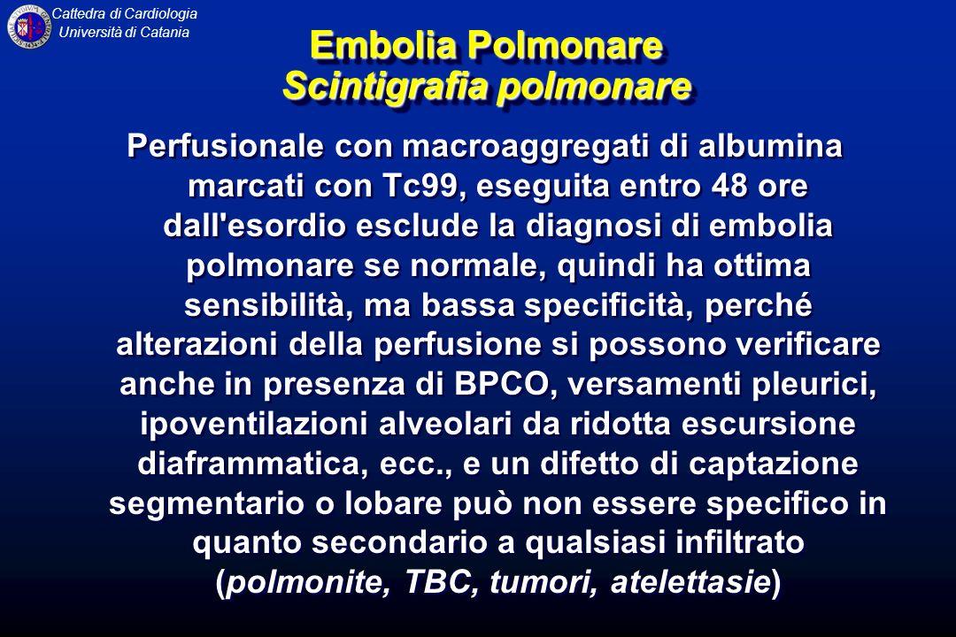 Cattedra di Cardiologia Università di Catania Embolia Polmonare Scintigrafia polmonare Perfusionale con macroaggregati di albumina marcati con Tc99, e