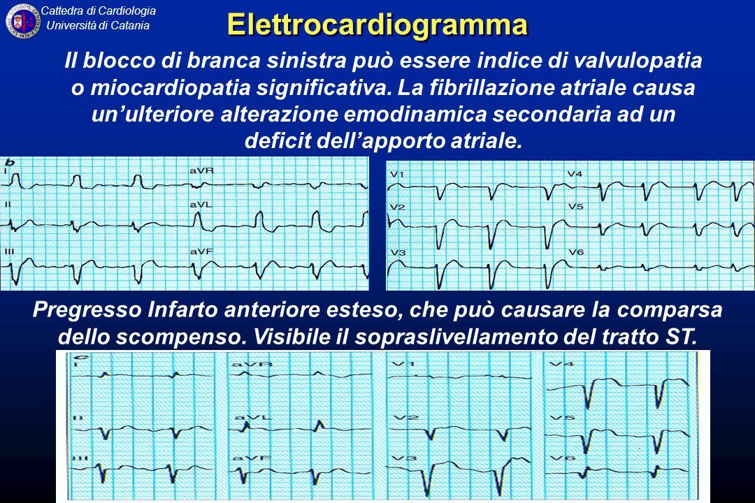 Cattedra di Cardiologia Università di Catania Il blocco di branca sinistra può essere indice di valvulopatia o miocardiopatia significativa. La fibril