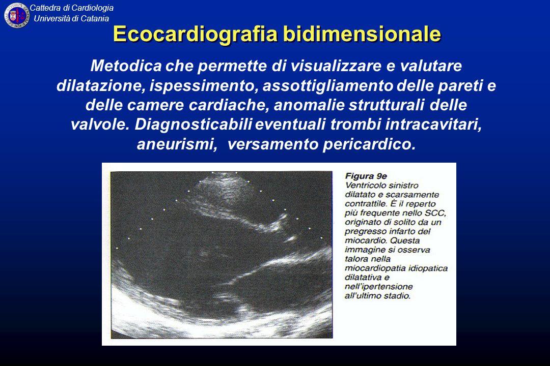 Cattedra di Cardiologia Università di Catania Metodica che permette di visualizzare e valutare dilatazione, ispessimento, assottigliamento delle paret