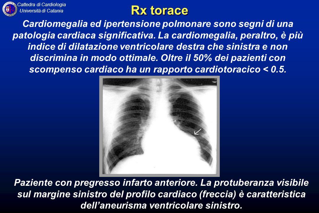 Cattedra di Cardiologia Università di Catania Cardiomegalia ed ipertensione polmonare sono segni di una patologia cardiaca significativa. La cardiomeg