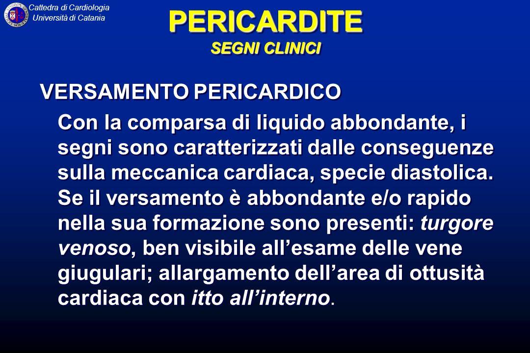 Cattedra di Cardiologia Università di Catania Sovraslivellamento del tratto ST che interessa due o tre derivazioni periferiche e le precordiali da V2 a V6, con depressioni reciproche in aVR e talvolta in V2, senza modificazioni del QRS, a eccezione di occasionali riduzioni dellampiezza dei voltaggi nei pazienti con importante versamento pericardico.