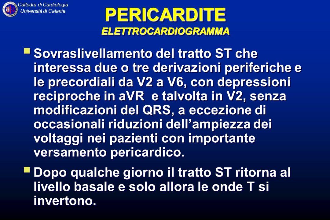 Cattedra di Cardiologia Università di Catania Nellinfarto acuto del miocardio, invece, si osservano modificazioni speculari del tratto ST e alterazioni del complesso QRS, con comparsa di onde Q, mancato incremento dellonda R nelle periferiche e inversione dellonda T, che precedono di qualche ora il ritorno del tratto ST alla linea isoelettrica.