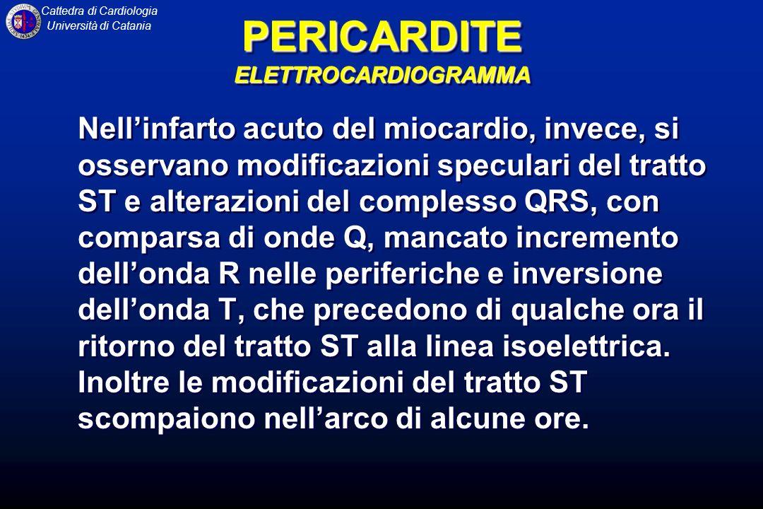 Cattedra di Cardiologia Università di Catania Lecocardiografia rappresenta la metodica diagnostica di scelta in quanto si è dimostrata sensibile, specifica, semplice, non invasiva ed eseguibile al letto del malato.